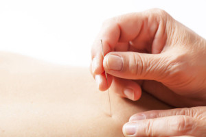 Acupuncture Orpington